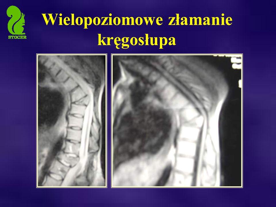 Wielopoziomowe złamanie kręgosłupa