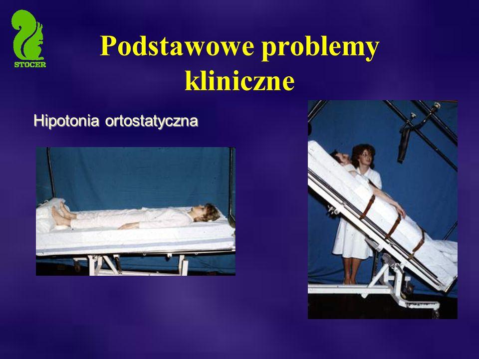 Podstawowe problemy kliniczne Hipotonia ortostatyczna