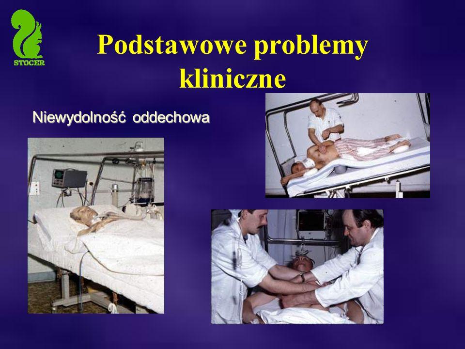 Podstawowe problemy kliniczne Niewydolność oddechowa