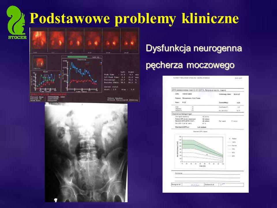 Podstawowe problemy kliniczne Dysfunkcja neurogenna pęcherza moczowego
