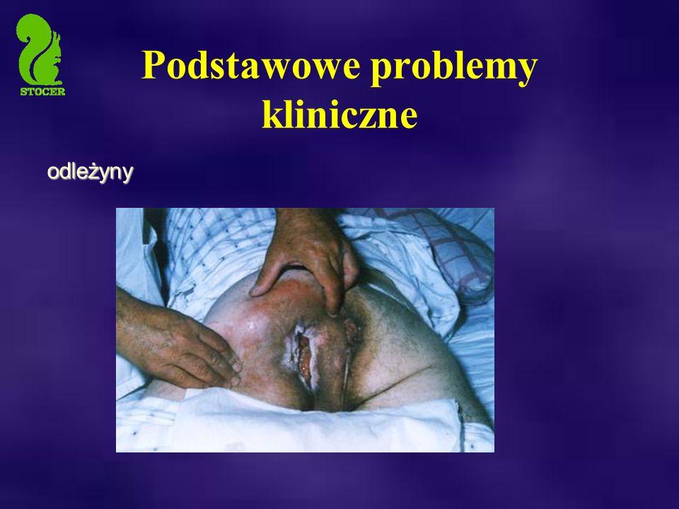Podstawowe problemy kliniczne odleżyny