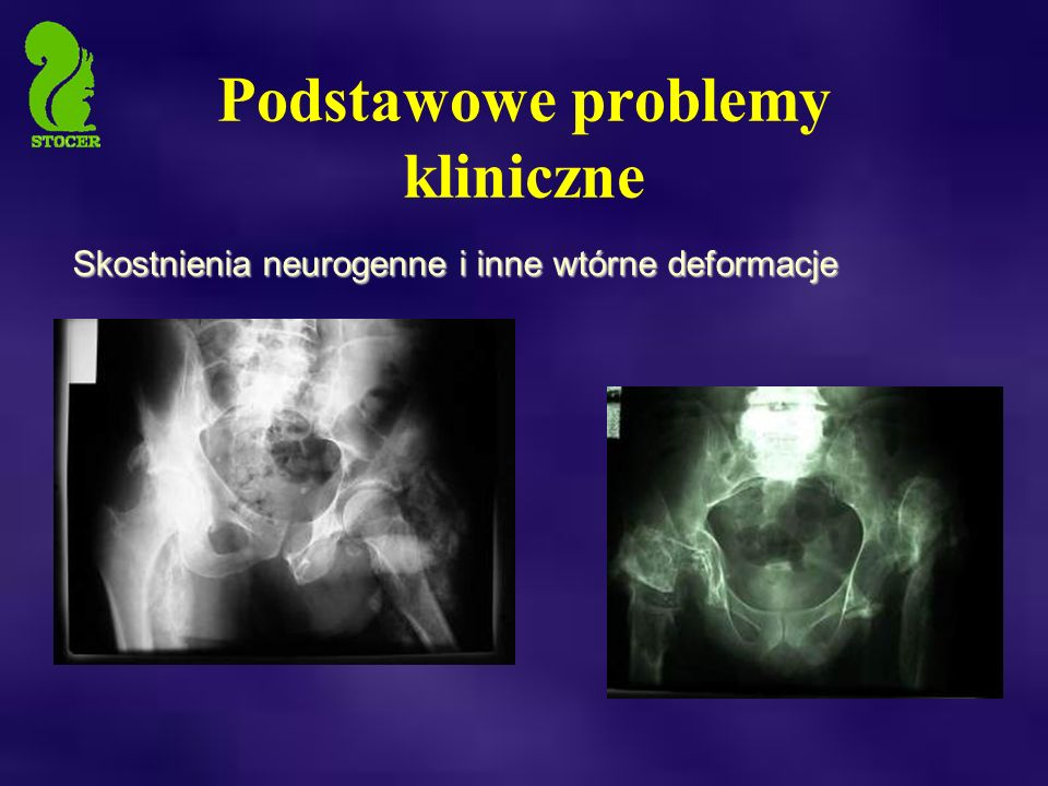 Skostnienia neurogenne i inne wtórne deformacje