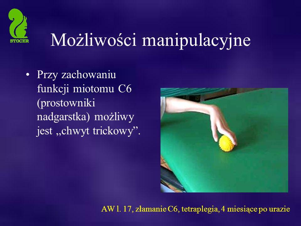 """Możliwości manipulacyjne Przy zachowaniu funkcji miotomu C6 (prostowniki nadgarstka) możliwy jest """"chwyt trickowy ."""