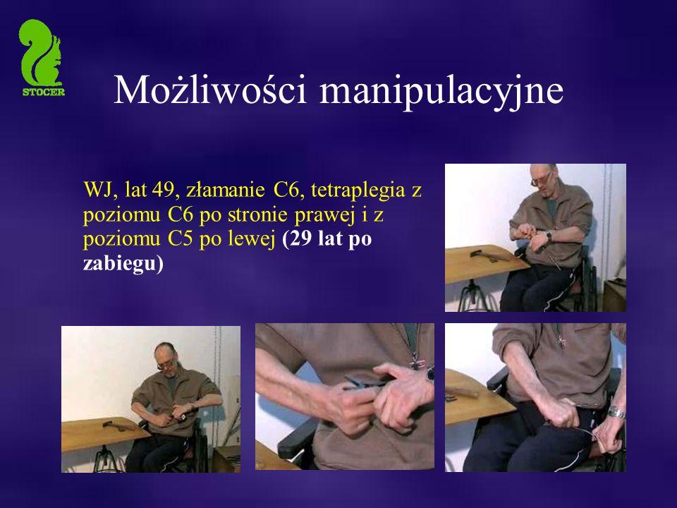 Możliwości manipulacyjne WJ, lat 49, złamanie C6, tetraplegia z poziomu C6 po stronie prawej i z poziomu C5 po lewej (29 lat po zabiegu)
