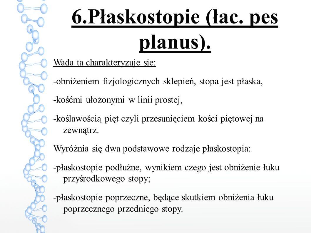 6.Płaskostopie (łac.pes planus).