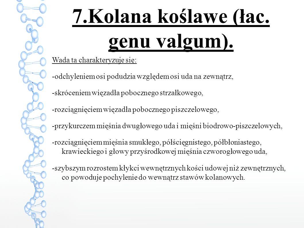 7.Kolana koślawe (łac.genu valgum).