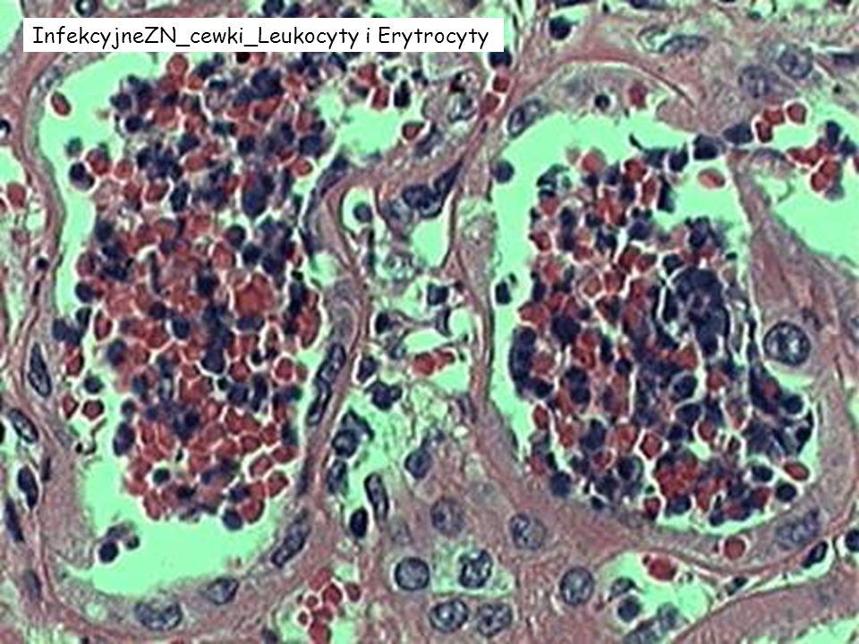 InfekcyjneZN_cewki_Leukocyty i Erytrocyty