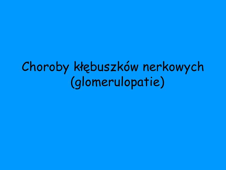Choroby kłębuszków nerkowych (glomerulopatie)