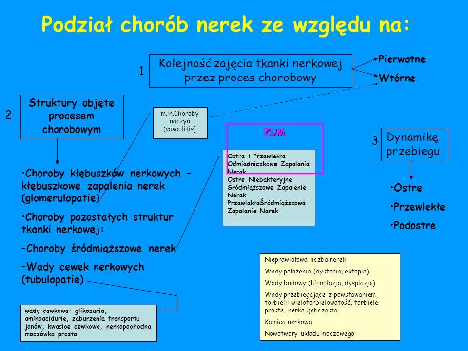 Struktury objęte procesem chorobowym Kolejność zajęcia tkanki nerkowej przez proces chorobowy Dynamikę przebiegu Podział chorób nerek ze względu na: C