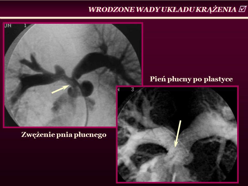 Zwężenie pnia płucnego WRODZONE WADY UKŁADU KRĄŻENIA  Pień płucny po plastyce