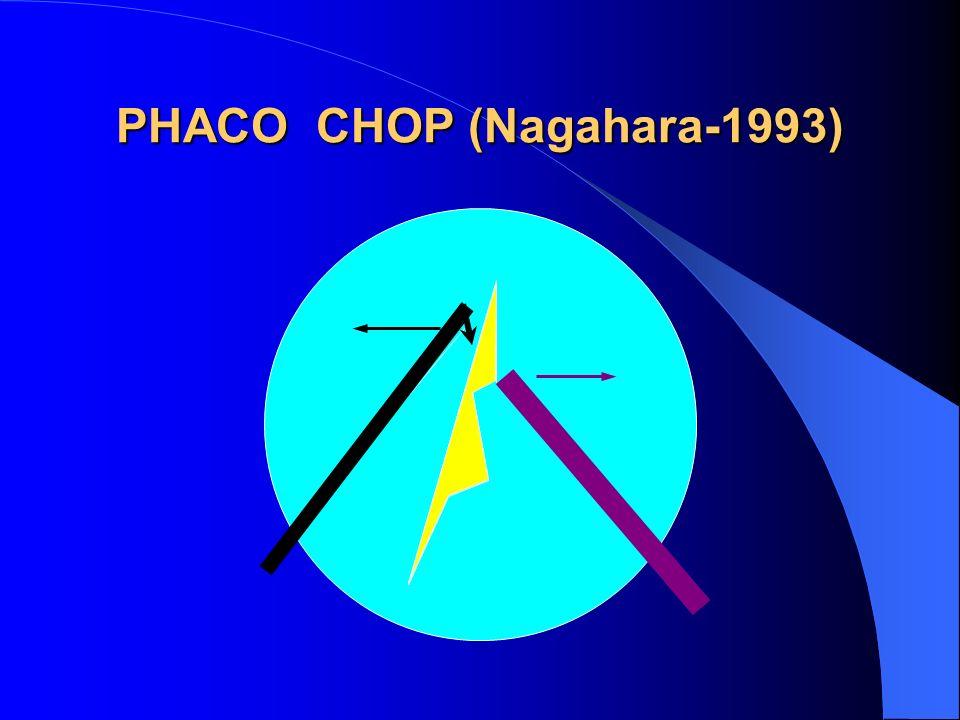 PHACO CHOP (Nagahara-1993)
