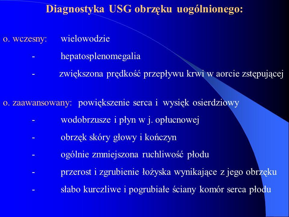 Diagnostyka USG obrzęku uogólnionego: o. wczesny: wielowodzie - hepatosplenomegalia - zwiększona prędkość przepływu krwi w aorcie zstępującej o. zaawa
