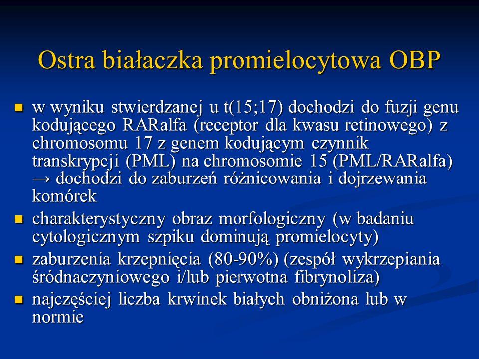 Ostra białaczka promielocytowa OBP w wyniku stwierdzanej u t(15;17) dochodzi do fuzji genu kodującego RARalfa (receptor dla kwasu retinowego) z chromo