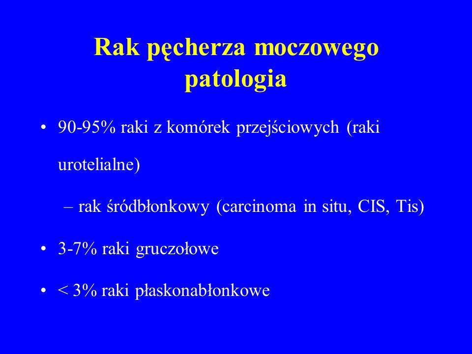Rak pęcherza moczowego patologia 90-95% raki z komórek przejściowych (raki urotelialne) –rak śródbłonkowy (carcinoma in situ, CIS, Tis) 3-7% raki gruczołowe < 3% raki płaskonabłonkowe