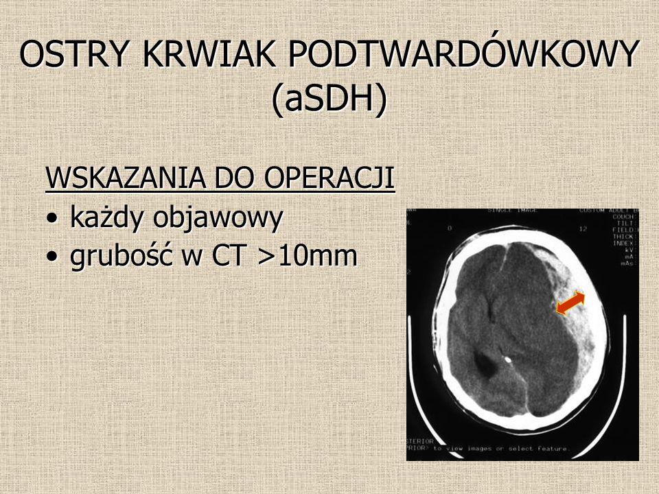 OSTRY KRWIAK PODTWARDÓWKOWY (aSDH) WSKAZANIA DO OPERACJI każdy objawowykażdy objawowy grubość w CT >10mmgrubość w CT >10mm