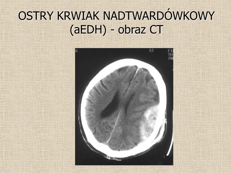 OSTRY KRWIAK NADTWARDÓWKOWY (aEDH) - obraz CT