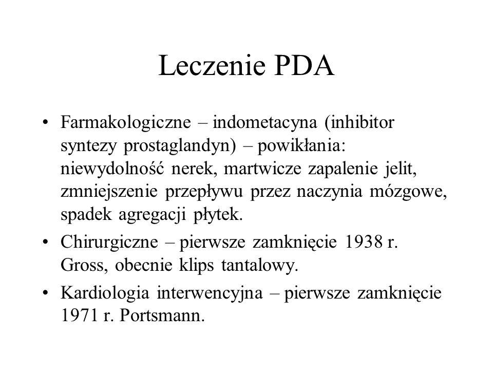Leczenie PDA Farmakologiczne – indometacyna (inhibitor syntezy prostaglandyn) – powikłania: niewydolność nerek, martwicze zapalenie jelit, zmniejszeni