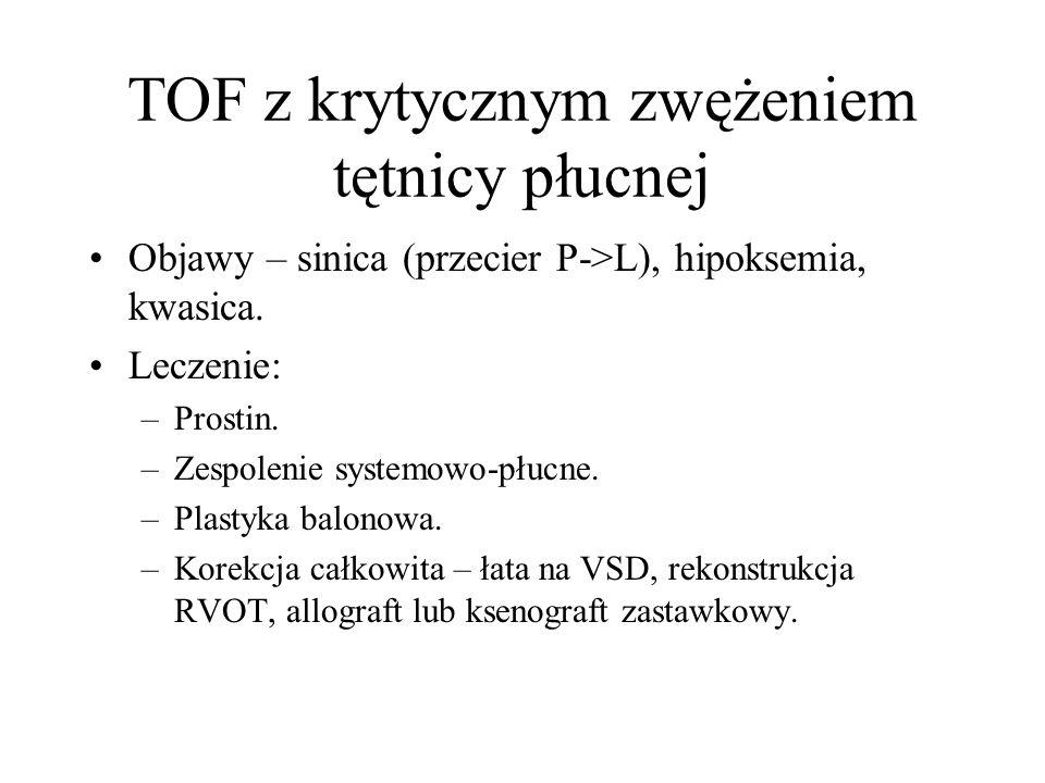 TOF z krytycznym zwężeniem tętnicy płucnej Objawy – sinica (przecier P->L), hipoksemia, kwasica. Leczenie: –Prostin. –Zespolenie systemowo-płucne. –Pl
