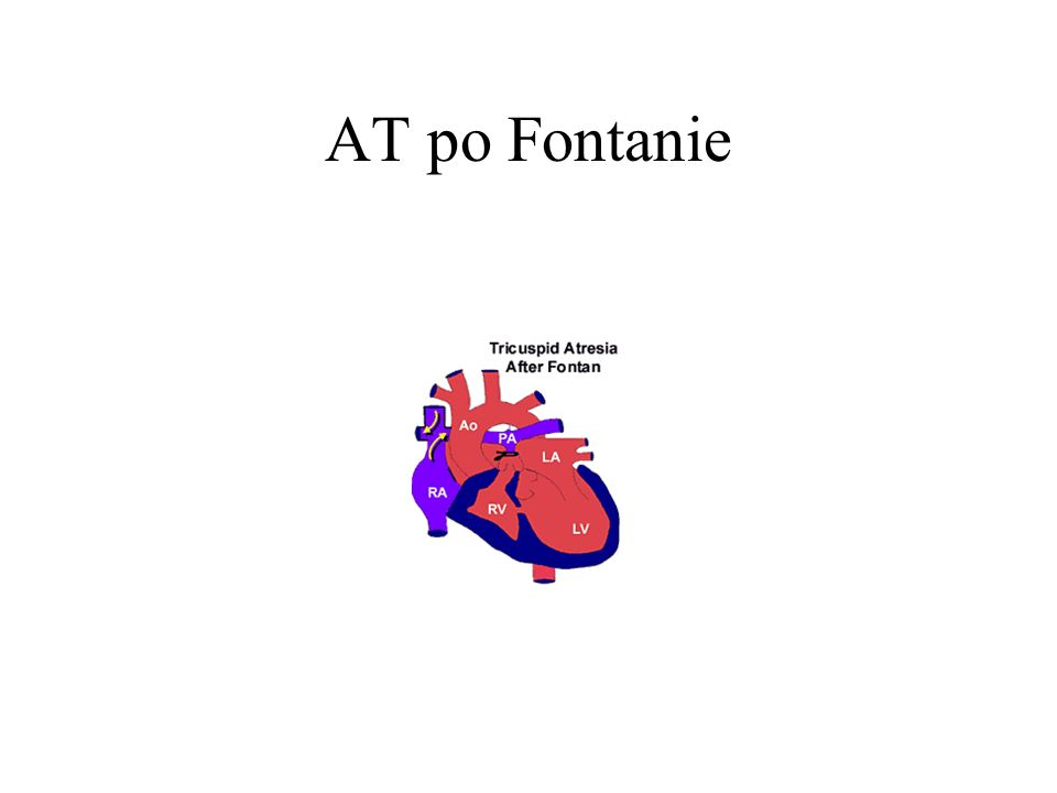 AT po Fontanie