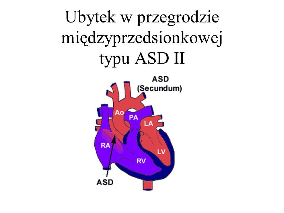 Ubytek w przegrodzie międzyprzedsionkowej typu ASD II