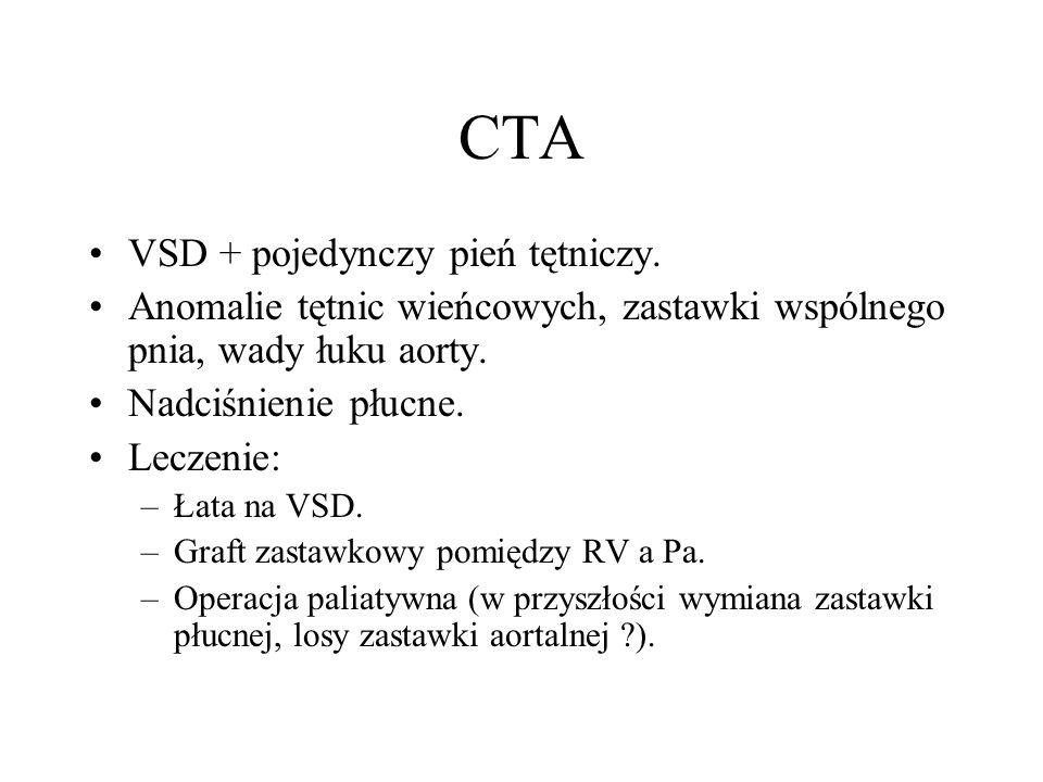 CTA VSD + pojedynczy pień tętniczy. Anomalie tętnic wieńcowych, zastawki wspólnego pnia, wady łuku aorty. Nadciśnienie płucne. Leczenie: –Łata na VSD.