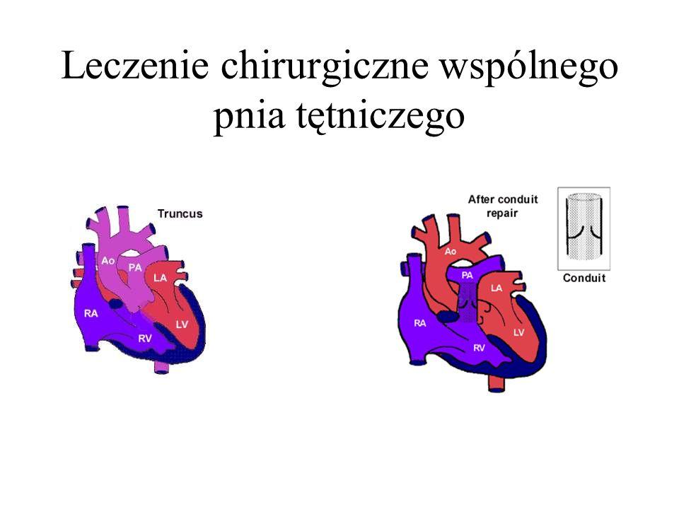 Leczenie chirurgiczne wspólnego pnia tętniczego