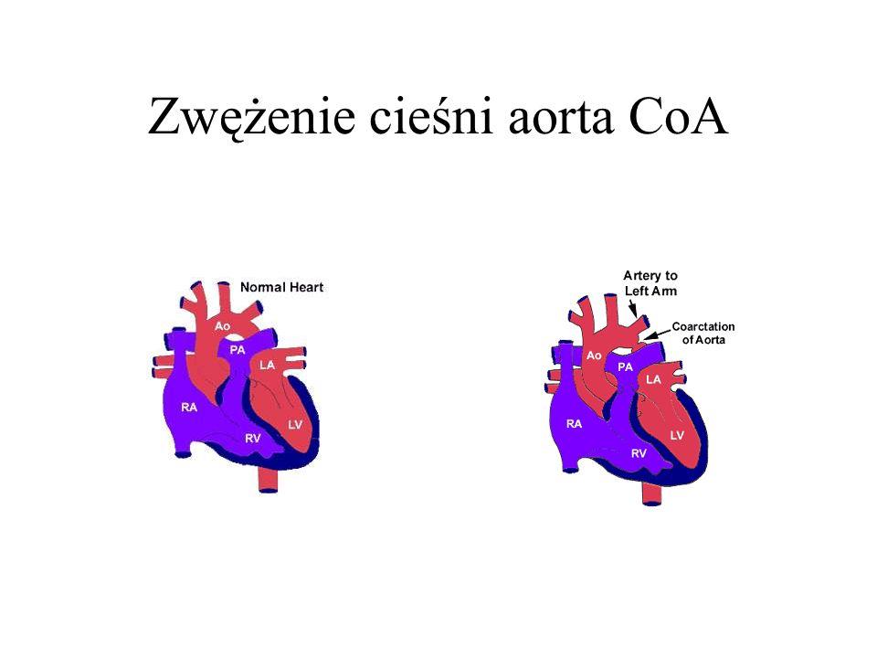 Zwężenie cieśni aorta CoA