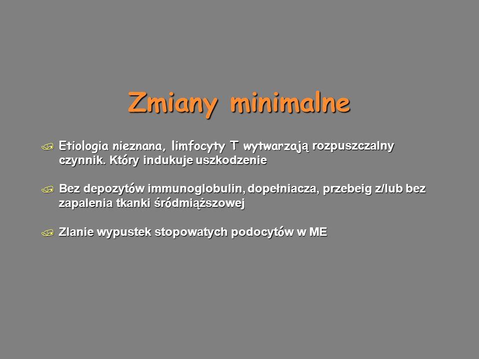 Zmiany minimalne  Etiologia nieznana, limfocyty T wytwarzaj ą rozpuszczalny czynnik.