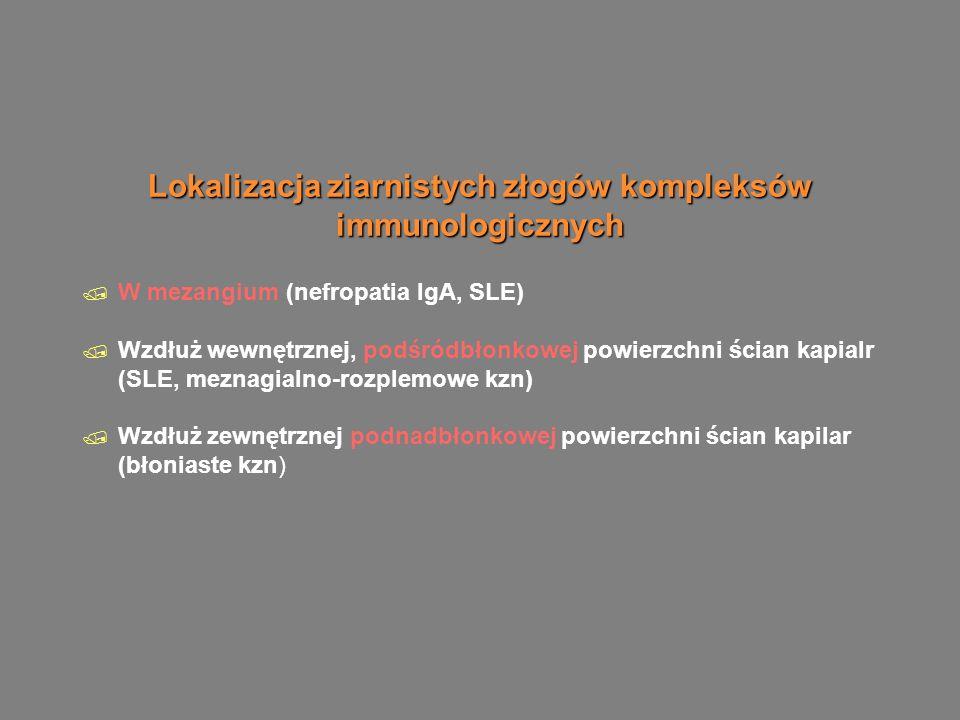 Uszkodzenie k łębuszka zależy od  Miejsca formowania si ę depozyt u (podnab łonkowe nie są zapalne, podśr ó dbłonkowe, mezangialne są zapalne) Dużo kom ó rek napływowych Średnia ilość kom ó rek napływowych  Ostre uszkodzenie: neutrofile/monocyty, przewlekłe uszkodzenie: monocyty/makrofagi limfocyty T, aktywowane kom ó rki mezangium r ó wnież moga wytwarzać wolene rodniki tlenowe, proteasy, cytokiny  Mechanizmu formowania się depozytu (lokalnie preformowane depozyty są bardziej nefrogenne, niż preformowane na obwodzie)  Biologicznych właściwości zdeponiowanych kompleks ó w (przeciwciała wiąźąće komplement wywołują większe uszkodzenie, niż niewiążące dopełniacza)  Ilości zdeponowanych przeciwciał  Miejsca formowania si ę depozyt u (podnab łonkowe nie są zapalne, podśr ó dbłonkowe, mezangialne są zapalne) Dużo kom ó rek napływowych Średnia ilość kom ó rek napływowych  Ostre uszkodzenie: neutrofile/monocyty, przewlekłe uszkodzenie: monocyty/makrofagi limfocyty T, aktywowane kom ó rki mezangium r ó wnież moga wytwarzać wolene rodniki tlenowe, proteasy, cytokiny  Mechanizmu formowania się depozytu (lokalnie preformowane depozyty są bardziej nefrogenne, niż preformowane na obwodzie)  Biologicznych właściwości zdeponiowanych kompleks ó w (przeciwciała wiąźąće komplement wywołują większe uszkodzenie, niż niewiążące dopełniacza)  Ilości zdeponowanych przeciwciał