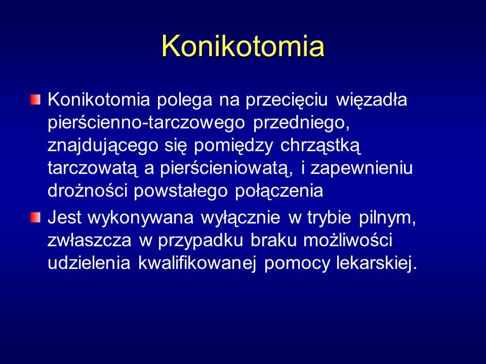 Konikotomia Konikotomia polega na przecięciu więzadła pierścienno-tarczowego przedniego, znajdującego się pomiędzy chrząstką tarczowatą a pierścieniowatą, i zapewnieniu drożności powstałego połączenia Jest wykonywana wyłącznie w trybie pilnym, zwłaszcza w przypadku braku możliwości udzielenia kwalifikowanej pomocy lekarskiej.