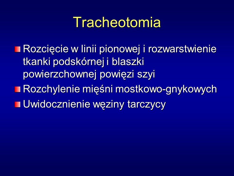 Tracheotomia Rozcięcie w linii pionowej i rozwarstwienie tkanki podskórnej i blaszki powierzchownej powięzi szyi Rozchylenie mięśni mostkowo-gnykowych Uwidocznienie węziny tarczycy