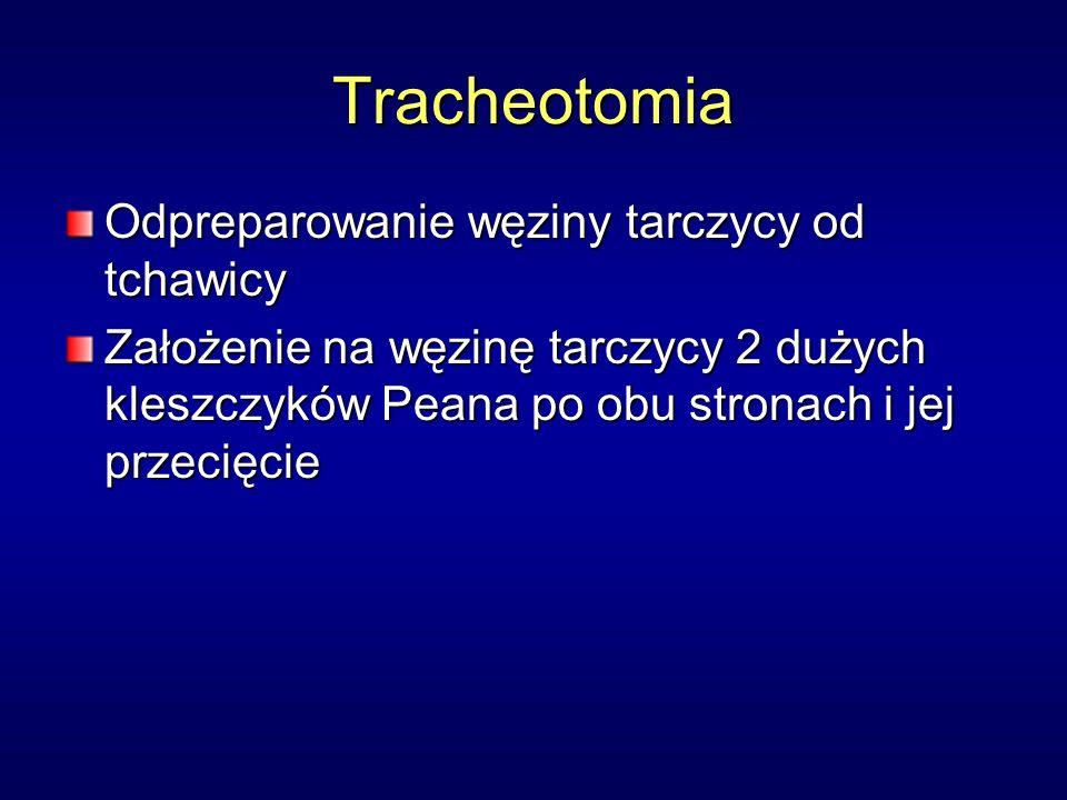 Tracheotomia Odpreparowanie węziny tarczycy od tchawicy Założenie na węzinę tarczycy 2 dużych kleszczyków Peana po obu stronach i jej przecięcie