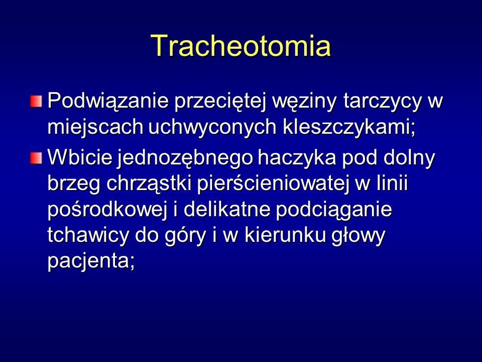 Tracheotomia Podwiązanie przeciętej węziny tarczycy w miejscach uchwyconych kleszczykami; Wbicie jednozębnego haczyka pod dolny brzeg chrząstki pierścieniowatej w linii pośrodkowej i delikatne podciąganie tchawicy do góry i w kierunku głowy pacjenta;