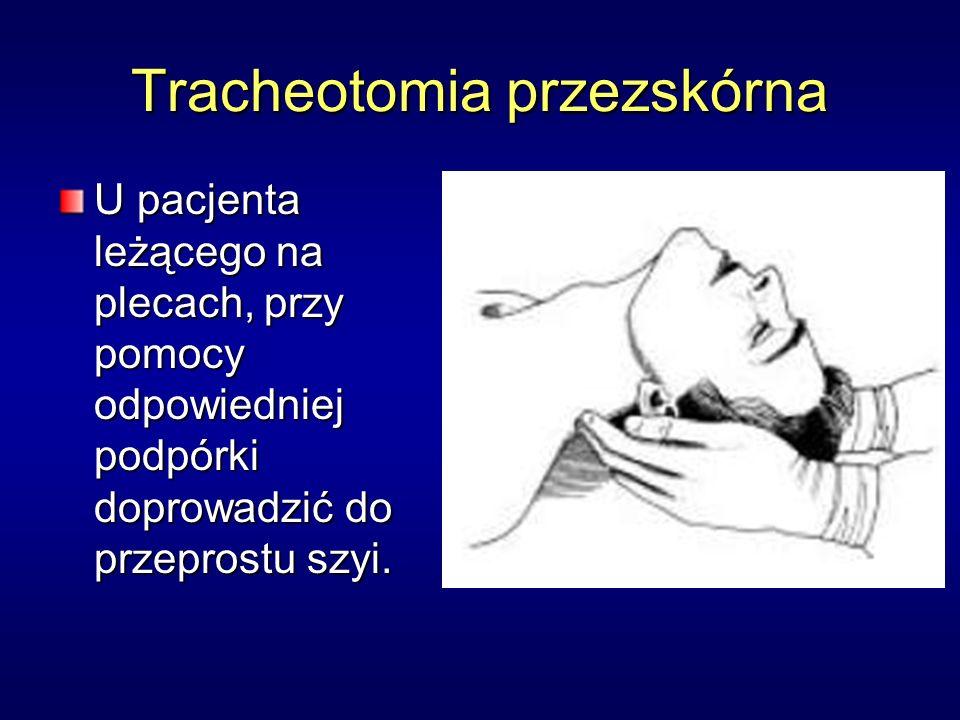 Tracheotomia przezskórna U pacjenta leżącego na plecach, przy pomocy odpowiedniej podpórki doprowadzić do przeprostu szyi.