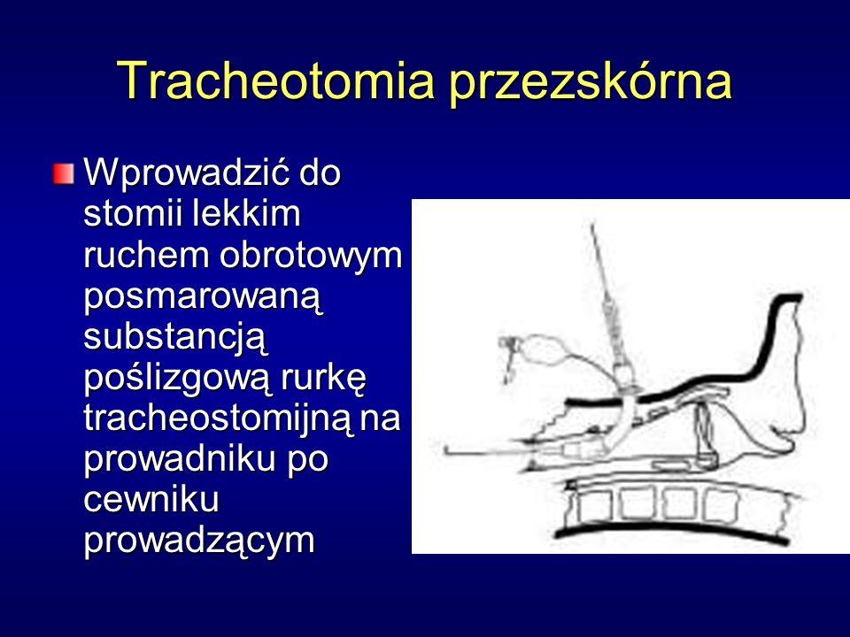 Tracheotomia przezskórna Wprowadzić do stomii lekkim ruchem obrotowym posmarowaną substancją poślizgową rurkę tracheostomijną na prowadniku po cewniku prowadzącym