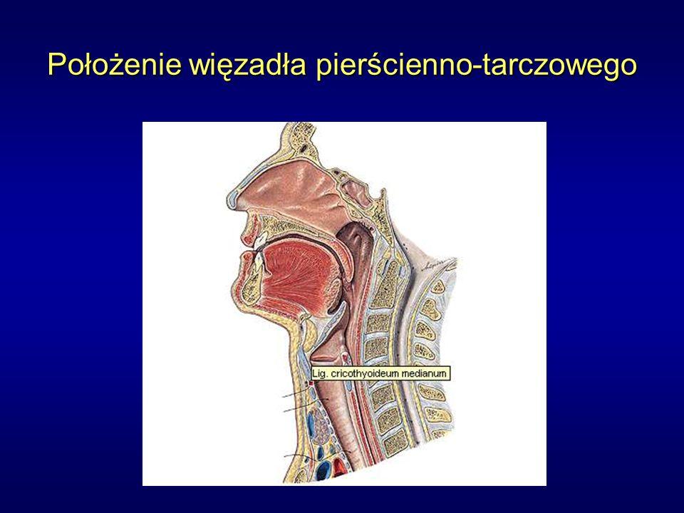 Tracheotomia Jeżeli zabieg nie jest wykonywany w znieczuleniu ogólnym – znieczulenie miejscowe skóry i głębszych tkanek 0,5% lidokainą (ok.