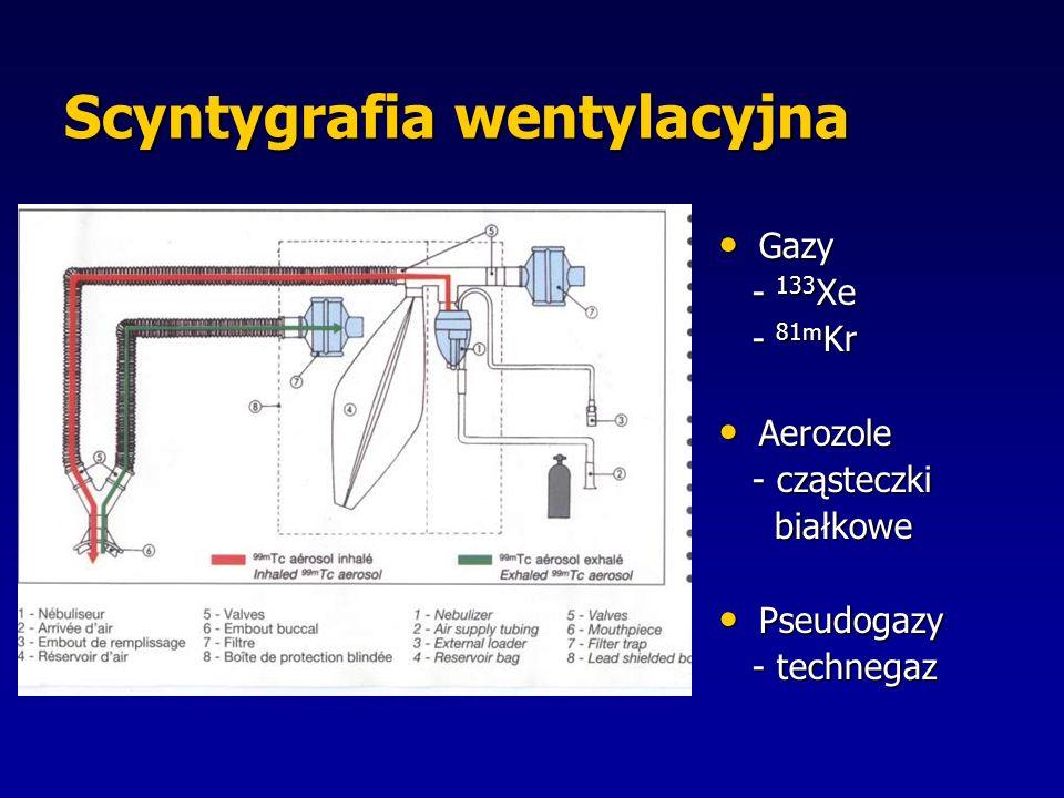 Gazy Gazy - 133 Xe - 133 Xe - 81m Kr - 81m Kr Aerozole Aerozole - cząsteczki - cząsteczki białkowe białkowe Pseudogazy Pseudogazy - technegaz - technegaz