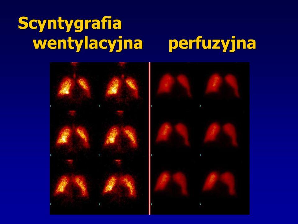Scyntygrafia wentylacyjna perfuzyjna