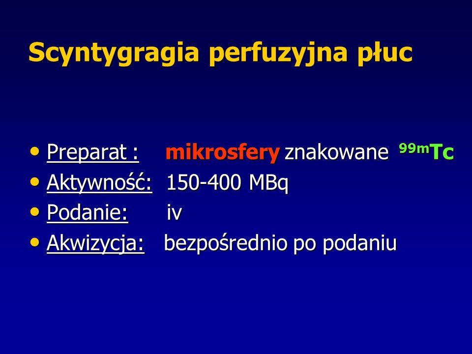 Scyntygragia perfuzyjna płuc Preparat : mikrosfery znakowane 99m Tc Preparat : mikrosfery znakowane 99m Tc Aktywność: 150-400 MBq Aktywność: 150-400 MBq Podanie: iv Podanie: iv Akwizycja: bezpośrednio po podaniu Akwizycja: bezpośrednio po podaniu