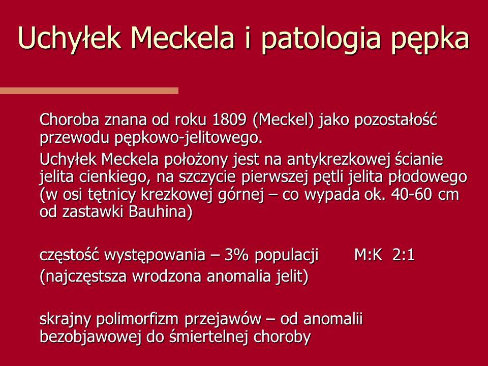 Uchyłek Meckela i patologia pępka Choroba znana od roku 1809 (Meckel) jako pozostałość przewodu pępkowo-jelitowego. Uchyłek Meckela położony jest na a