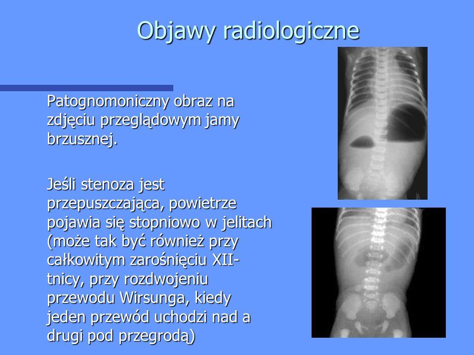 Objawy radiologiczne Patognomoniczny obraz na zdjęciu przeglądowym jamy brzusznej. Jeśli stenoza jest przepuszczająca, powietrze pojawia się stopniowo