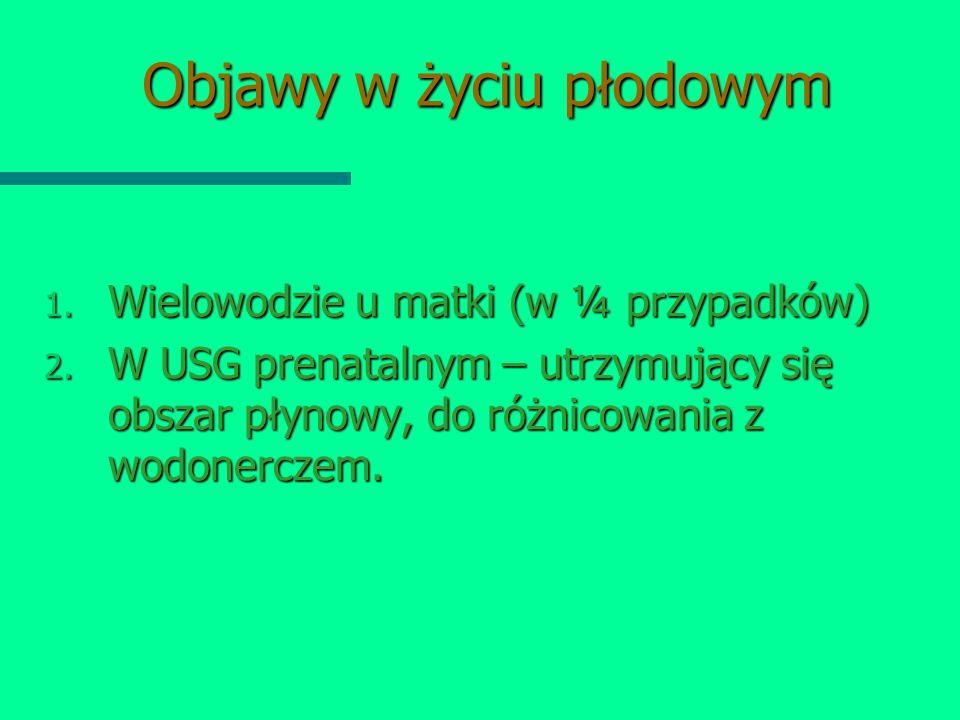 Objawy w życiu płodowym 1. Wielowodzie u matki (w ¼ przypadków) 2. W USG prenatalnym – utrzymujący się obszar płynowy, do różnicowania z wodonerczem.
