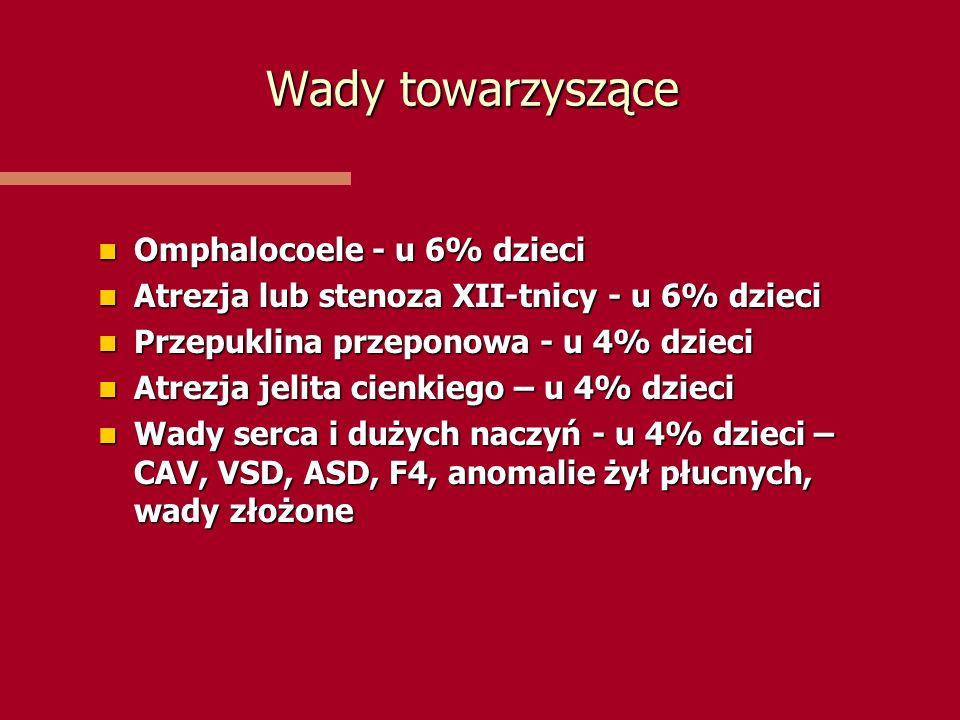 Wady towarzyszące Omphalocoele - u 6% dzieci Omphalocoele - u 6% dzieci Atrezja lub stenoza XII-tnicy - u 6% dzieci Atrezja lub stenoza XII-tnicy - u