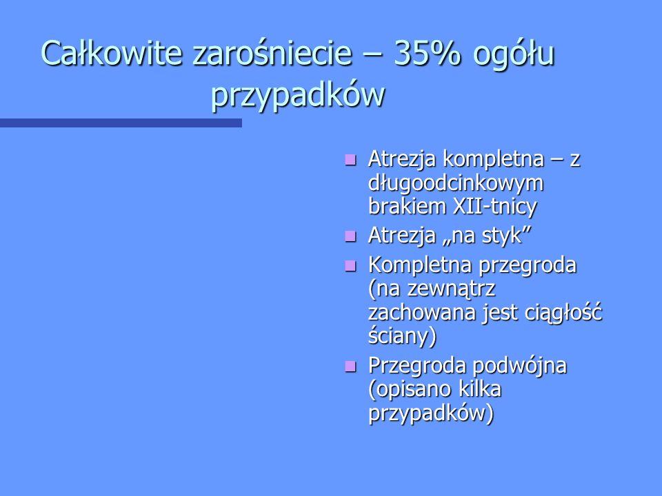 """Całkowite zarośniecie – 35% ogółu przypadków Atrezja kompletna – z długoodcinkowym brakiem XII-tnicy Atrezja """"na styk"""" Kompletna przegroda (na zewnątr"""