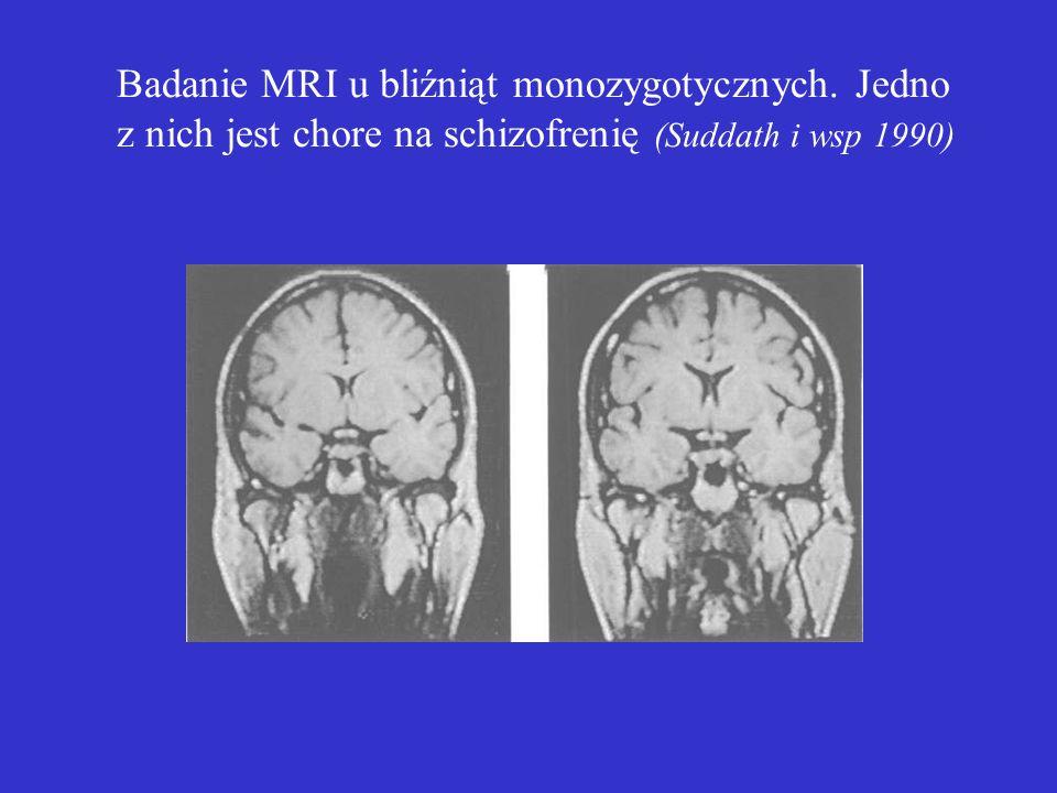 Badanie MRI u bliźniąt monozygotycznych.