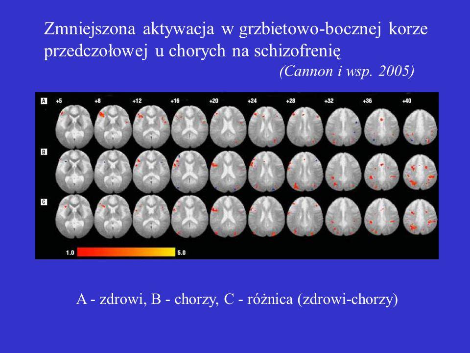 Zmniejszona aktywacja w grzbietowo-bocznej korze przedczołowej u chorych na schizofrenię (Cannon i wsp.