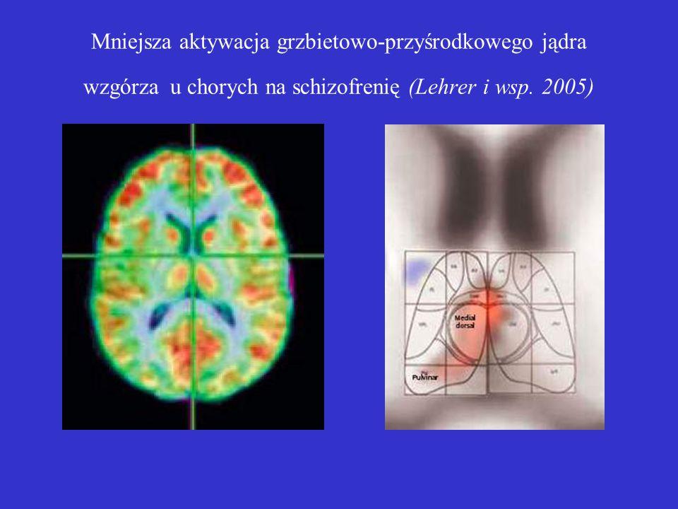 Mniejsza aktywacja grzbietowo-przyśrodkowego jądra wzgórza u chorych na schizofrenię (Lehrer i wsp.