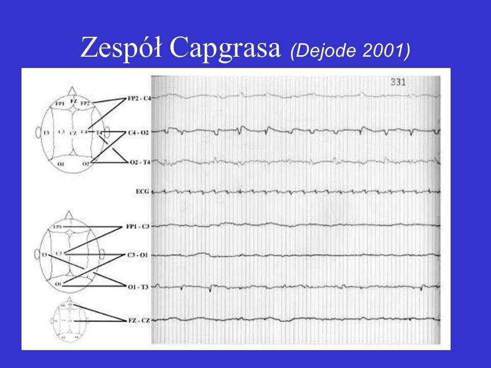 Zespół Capgrasa (Dejode 2001)
