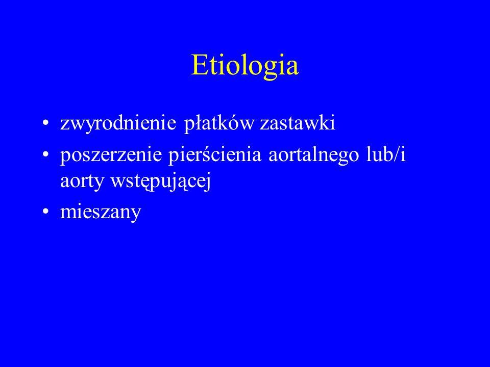 Etiologia zwyrodnienie płatków zastawki –zwyrodnienie poreumatyczne –zwyrodnienie zastawki dwupłatkowej –następstwo infekcyjnego zapalenia wsierdzia