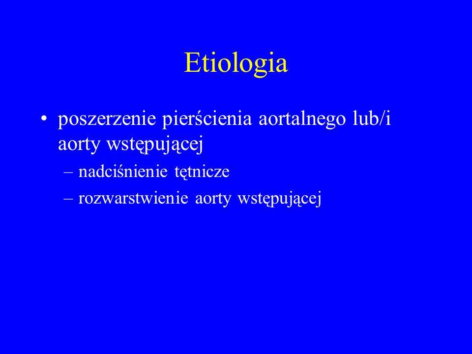 Etiologia poszerzenie pierścienia aortalnego lub/i aorty wstępującej –nadciśnienie tętnicze –rozwarstwienie aorty wstępującej